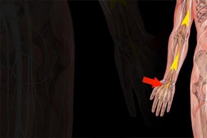 schnappfinger ohne op heilen